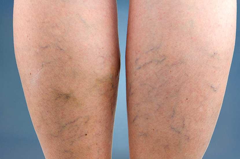 """Les varices se forment lorsque le sang dans les jambes """"stagne""""."""